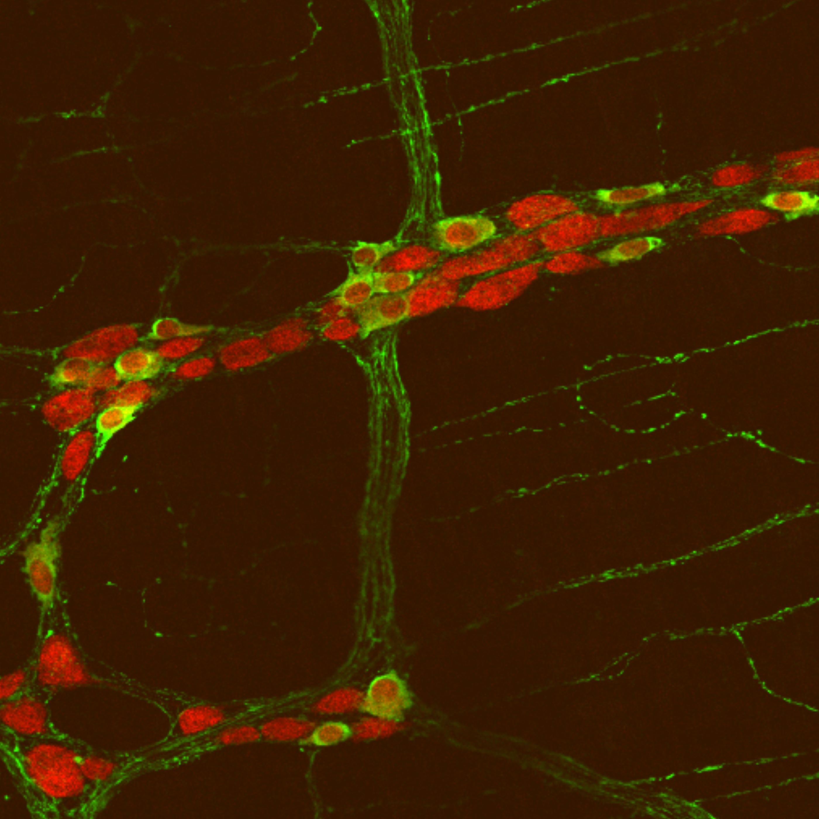 An image showing neurons in the gut of a mouse with the autism-related gene mutation. The study found mice with the mutation had more neurons in the small intestine.