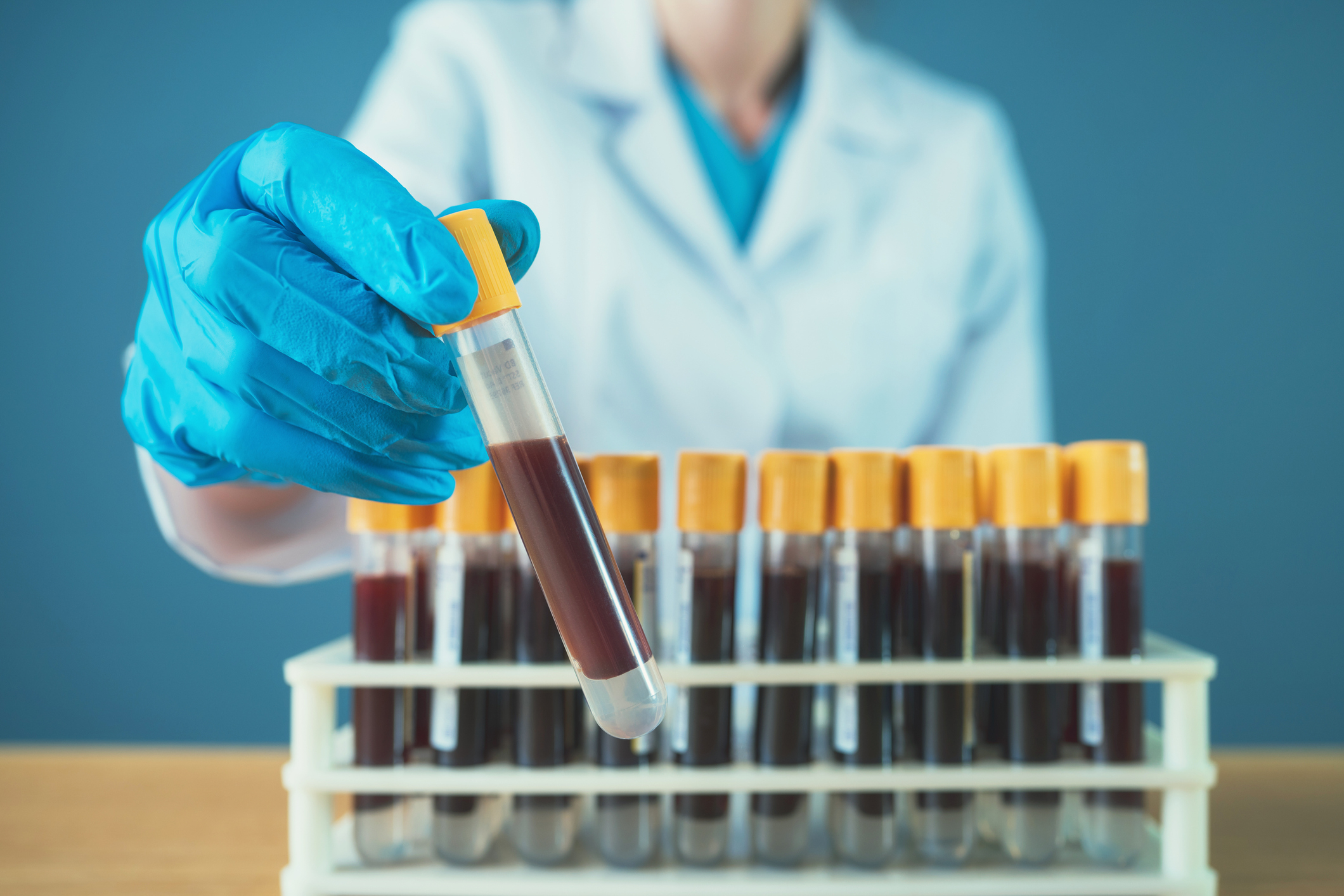 Test Measures Immune Response To Improve Ovarian Cancer Diagnosis Rmit University