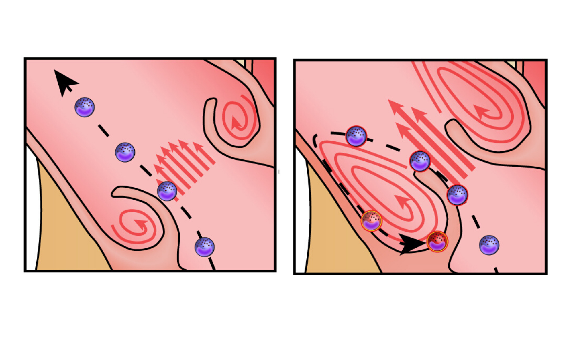 Illustration showing the path of immune cells through a healthy aortic valve (left) and stenotic aortic valve (right).