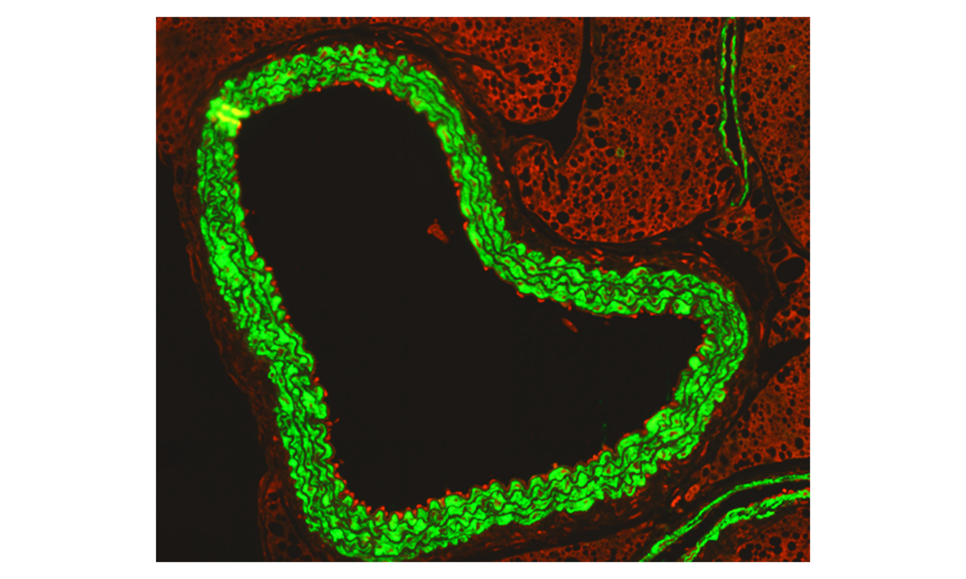 An immunofluorescence microscopy image shows how activated immune cells 'stick' to the inside of the aorta during flu infection in pregnancy.