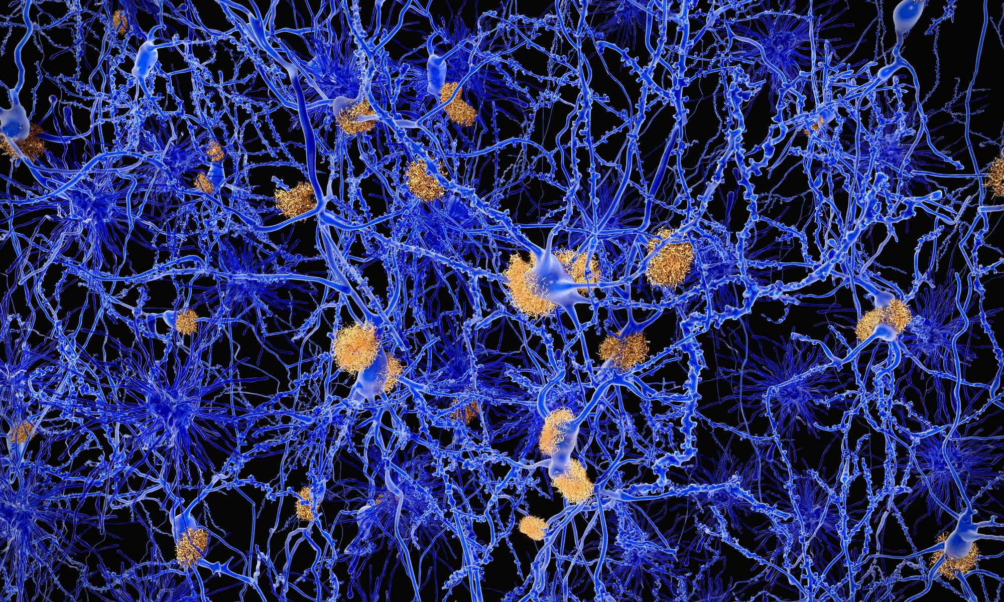 Image showing neurons with amyloid plaques.