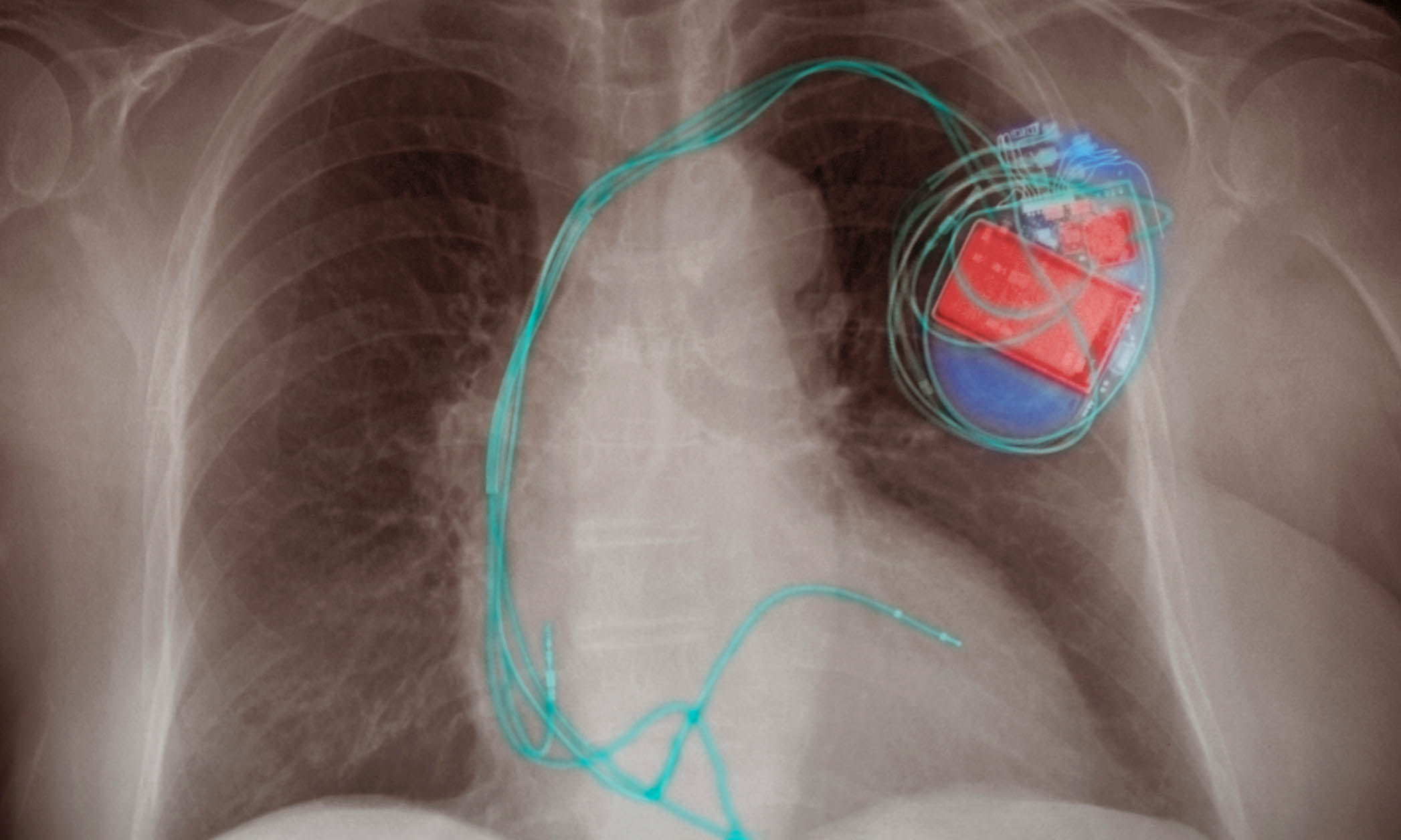 X-ray image showing a pacemaker and a patient's chest